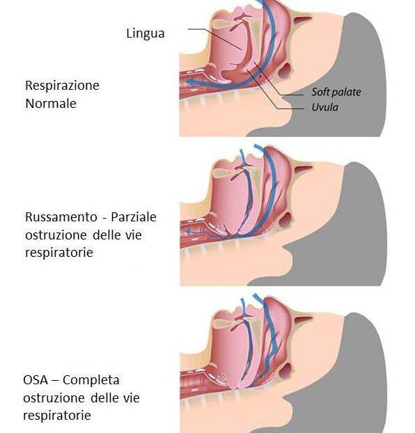 Apnee ostruttiva del sonno - OSA